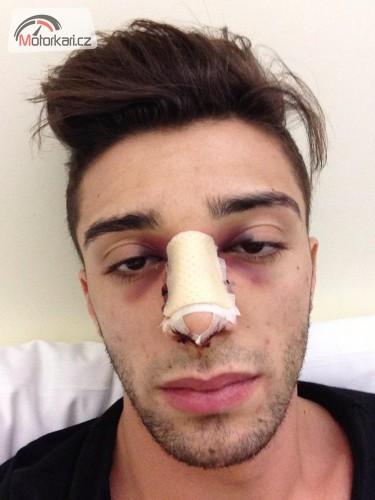 Andrea Iannone �sp�n� operov�n na nose
